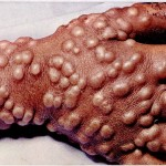 smallpox-150x150